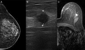 La mamografía (A) mostró tejido fibroglandular. La ecografía (B) identificó un nódulo de 10mm dentro de la mama izquierda. La resonancia magnética (C) localizó la lesión en el cuadrante superior externo de la mama izquierda con características cinéticas malignas.