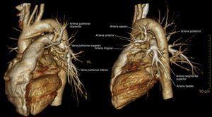 Reconstrucción volumétrica, relación de las arterias lobares y segmentarias izquierdas con las venas pulmonares: a) visión lateral; b) visión posterolateral.