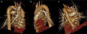 Reconstrucción volumétrica que muestra la capacidad de rotación de las imágenes: a) patrón de vascularización pulmonar derecho, visión lateral; b) patrón de vascularización pulmonar izquierdo, visión lateral: c) patrón de vascularización pulmonar, visión posterior.