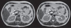 Colangio-RMN donde se aprecia divertículo (flecha) medial al duodeno (D) en cortes axiales.