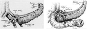 Modelos de trasplante en los 2 primeros casos de R. Lillehei.