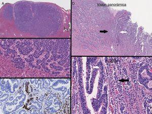 A y B) Metástasis hepática. C) Sinaptofisina. D y E) Tumor que muestra tanto el componente adenocarcinoma (flecha blanca) y componente neuroendocrino (NE) (flecha negra).