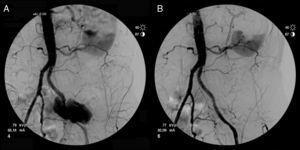 Arteriografía diagnóstica (A) y posprocedimiento (B).