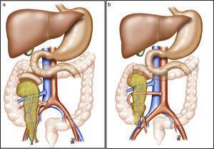 a) Trasplante de páncreas con drenaje entérico de la secreción exocrina a duodeno nativo, drenaje venoso sistémico y reconstrucción arterial del páncreas mediante injerto arterial en «Y». b) Trasplante de páncreas con drenaje entérico de la secreción exocrina a duodeno nativo, drenaje venoso sistémico y reconstrucción arterial del páncreas mediante anastomosis esplenomesentérica terminoterminal. La ilustración muestra la anastomosis arterial del injerto a la aorta. En nuestra serie, la anastomosis se realizó a la arteria ilíaca primitiva derecha.