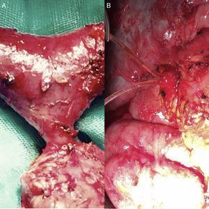 A) Inserción de la papila en la región duodeno pancreática. B) Sección de la papila a nivel de su base&#59; conductos biliar y pancreático tutorados.