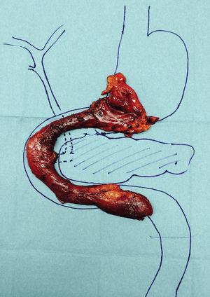 Pieza de antroduodenectomía con preservación pancreática.