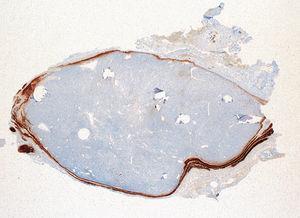 La proteína S100 identifica el tejido neuronal que rodea el adenoma, ×20.