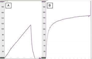 Registro manométrico de una anastomosis esofagogástrica en una rata del grupo control (A) y una rata con refuerzo de apósito de colágeno (B).