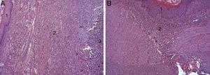(A) Imagen representativa de los cambios histopatológicos más relevantes observados tras la aplicación del parche de apósito de colágeno a los 8 días tras la intervención. Tras la regeneración epitelial completa (1), se observa en la zona de sección la presencia de una profusa reacción inflamatoria, caracterizada por una abundante proliferación conectiva (2) y vascular (cabezas de flecha), con una zona central rica en PMN y macrófagos (3), junto con restos de material proteináceo fibrilar y debris celular (asteriscos). Hematoxilina-eosina ×100 aumentos. (B) Imagen representativa de los cambios histopatológicos más relevantes observados en los animales control a los 8 días tras la intervención. Tras la regeneración epitelial completa (1) se observa en la zona de sección la presencia de un infiltrado inflamatorio difuso rico en macrófagos y PMN (2), con una zona de debris celular (asterisco). Hematoxilina-eosina ×100 aumentos.