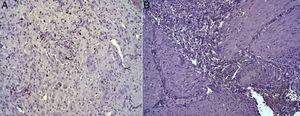 (A) Expresión de la proteína Ki-67 en el esófago de animales en los que se aplicó el parche apósito de colágeno a los 8 días tras la intervención. Se observan abundantes fibroblastos positivos (asteriscos) y, ocasionalmente, células endoteliales (cabezas de flecha). Inmunohistoquímica ABC anti-Ki67 ×200 aumentos. (B) Expresión de la proteína Ki-67 en el esófago de los animales control a los 8 días tras la intervención. No se observan células positivas en el área de infiltrado inflamatorio (asterisco). Inmunohistoquímica ABC anti-Ki67 ×200 aumentos.