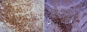 (A) Expresión del VEGF en el esófago de animales en los que se aplicó el parche apósito de colágeno a los 8 días tras la intervención. Se observan abundantes macrófagos positivos (asteriscos), junto a numerosos vasos sanguíneos (cabezas de flecha). Inmunohistoquímica ABC anti-VEGF ×200 aumentos. (B) Expresión del VEGF en el esófago de los animales control a los 8 días tras la intervención. Se observa un bajo número de células positivas (cabezas de flecha) en el infiltrado inflamatorio, próximo al área de debris celular (asterisco). Inmunohistoquímica ABC anti-VEGF ×200 aumentos.