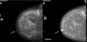 A) Mamografía de mama derecha BIRADS-1. B) Control a los 6 meses de esa misma mama, BIRADS-2.