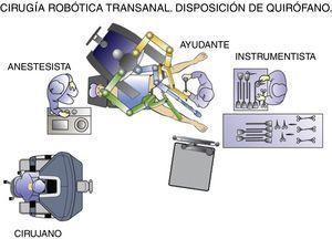 Cirugía robótica transanal. Disposición del quirófano.