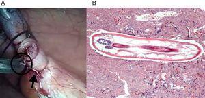 A) Imagen macroscópica de los parásitos. B) Cuerpo del parásito a mayor aumento. Se aprecia en el margen izquierdo 2 receptáculos con corpúsculos de ovocitos en su interior (H&E ×40).
