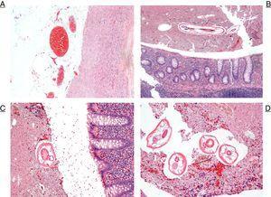 A) Se aprecia la pared externa apendicular con la grasa de la serosa que muestra vasos congestivos y las capas musculares a la derecha (H&E ×10). B) Imagen de poco aumento del apéndice cecal. Obsérvese en la parte superior el cuerpo del parásito entre material fecaloideo. En la parte inferior se aprecia la mucosa apendicular sin aparentes cambios de tipo inflamatorio (H&E ×4). C) A mayor aumento, una sección del parásito y el margen superior de la mucosa apendicular (H&E ×20). D) Varias secciones de los parásitos entre material fecaloide (H&E ×20).