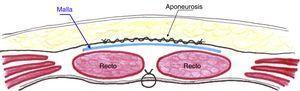 Esquema de la malla en posición retrofascial y por encima de los músculos rectos, aislada del espacio subcutáneo.