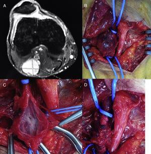 A) Detalle del aneurisma venoso poplíteo en la angio-RMN. B) Imagen intraoperatoria del aneurisma venoso. C) Detalle del aneurisma venoso abierto. D) Resultado tras la aneurismectomía tangencial del mismo con venorrafia lateral.