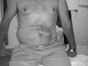 Seudohernia abdominal derecha tras una lesión medular D12 asimétrica.