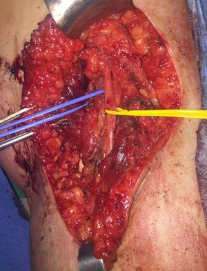 Imagen de región poplítea derecha tras linfadenectomía (referenciado en gris oscuro: nervio poplíteo, en gris claro: vena poplítea).