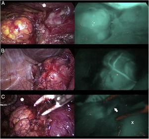 Tres casos (A, B y C) de adrenalectomía laparoscópica por vía anterior con dispositivo Image 1HD de Karl Storz®. En la columna de la izquierda aparecen las glándulas suprarrenales iluminadas con luz blanca y en la de la derecha bajo luz NIR tras infusión de 5mg de ICG intravenosos. Se aprecia la hiperfluorescencia suprarrenal en los 3 casos, claramente mayor a la del tejido graso circundante. La flecha blanca indica la vena suprarrenal derecha. Marcado con * la hiperfluorescencia hepática. Marcado con X la vena cava inferior.