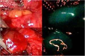 Dos glándulas paratiroides (A y B) que se muestran claramente autofluorescentes al iluminarse con luz del espectro NIR (imágenes de la derecha), con el dispositivo Image 1HD de Karl Storz®, sin que se haya administrado ningún trazador fluorescente exógeno.
