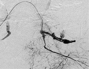Arteriografía: extravasación de contraste en arteria hipográstrica > izquierda.