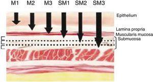 Subdivisión del carcinoma precoz de acuerdo con su invasión. Imagen extraída de: Eguchi et al.Histopathological criteria for additional treatment after endoscopic mucosal resection for esophageal cancer: analysis of 464 surgically resected cases. Mod Pathol. 2006;19(3):475-80.