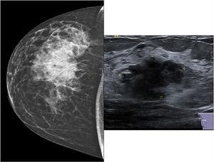 Mamografía que muestra masa en cuadrante superoexterno de mama derecha. A la derecha ecografía que muestra la lesión categorizada como BIRADS IVb.