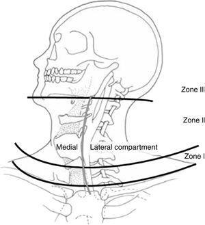 Zonas anatómicas del cuello. Fuente: Monson et al.69.