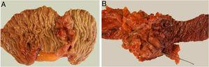 Estudio anatomopatológico de las piezas de resección quirúrgica tras duodenectomía (A) y duodenopancreatectomía cefálica (B).