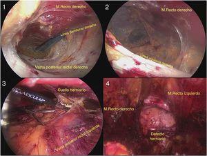 (1) Acceso retrorrectal. (2) Maniobra de cruce de la línea media. (3) Disección y reducción herniaria. (4) Disección completa de la cavidad retromuscular.