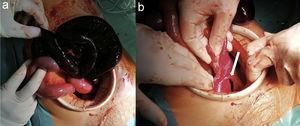 a) Asa de intestino delgado necrótica. b)Defecto del ligamento ancho (tipo ventana según Hunt, tipo3 según Cilley).