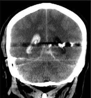 Trayecto bihemisférico con compromiso ventricular.