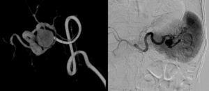 Estudio angiográfico donde se confirma dilatación de aspecto fusiforme localizado en el tercio distal de la arteria esplénica.