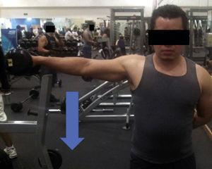 Ejercicio por contracción excéntrica para deltoides medio con uso de mancuernas; el movimiento concéntrico implica abducción de hombro; una vez abducido, se inicia la contracción excéntrica lenta acercando el brazo al tronco.