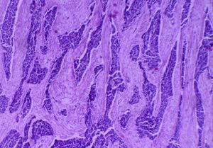 Microfotografía, ×4. Tumor constituido por células neoplásicas que se disponen en cordones y nidos, separados por tejido fibroconectivo de aspecto desmoplásico.