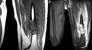 Resonancia magnética de fémur. Lesión medular en la unión del tercio medio con el tercio distal del fémur izquierdo que se asocia con fractura multifragmentaria sobre terreno patológico en una lesión neoplásica sin poder descartar que corresponda a un quiste óseo u otra dolencia.