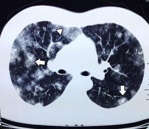 Tomografía axial computada de tórax, ventana pulmonar; se observan lesiones sólidas pequeñas y redondeadas, con signo del halo (flechas blancas), imágenes en vidrio despulido (cabeza de flecha).