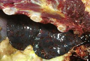 Parénquima pulmonar donde se aprecian lesiones metastásicas las cuales son puntiformes y hemorrágicas.