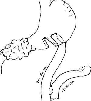 Técnica de gastro yeyuno anastomosis con separación gástrica parcial y reconstrucción en Y de Roux.