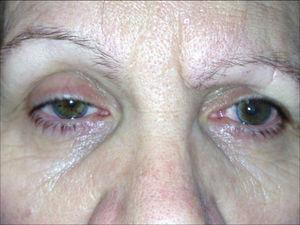 Imagen postoperatoria. Síndrome de Horner derecho. Se observa miosis, ptosis y enoftalmos del ojo derecho.