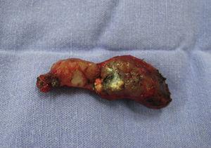 Biopsia pulmonar obtenida mediante cirugía torácica asistida por video, para estudio histopatológico.