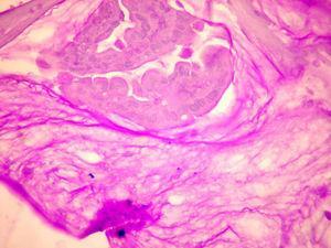 Isla de células neoplásicas inmersas en matriz de mucina ácido peryódico de Schiff (PAS, por sus siglas en inglés) positivo, característico del adenocarcinoma mucinoso.