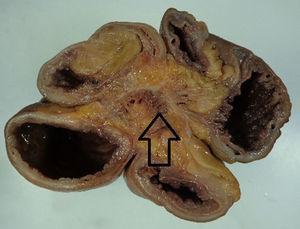 La flecha muestra la fibrosis mesentérica secundaria a la reacción desmoplásica causada por el carcinoide intestinal.