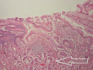 Grupo de células correspondientes a neoplasia neuroendocrina grado1 (tumor carcinoide) que infiltra la lámina propia, muscular de la mucosa, submucosa, muscular propia y serosa.