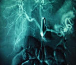 Arteriografía mesentérica que muestra la extravasación del contraste administrado a nivel de la arteria esplénica por rotura de un seudoaneurisma pancreático.