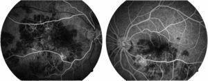 Imagen fluorangiográfica en fases tempranas de ambas áreas maculares. En esta etapa del estudio se pueden apreciar algunas zonas con hipofluorescencia en zonas correspondientes a las lesiones presentes en las fotografías clínicas.