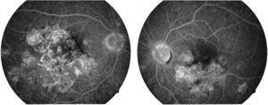Imagen fluorangiográfica en fases tardías de ambos ojos. Se aprecian zonas de hiperfluorescencia en algunas de las zonas que previamente, en las fases tempranas del estudio, eran hipofluorescentes en ambos ojos. Este cambio de hipofluorescencia temprana a hiperfluorescencia tardía de las lesiones es característico de las lesiones de la epiteliopatía pigmentaria placoide multifocal posterior aguda.