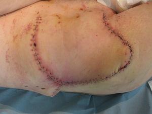 Resultado posquirúrgico.