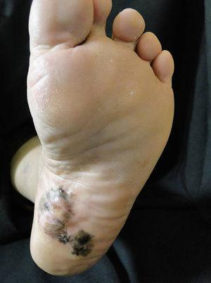 Paciente con melanoma acral plantar.